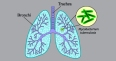 Tuberculosis (TB) Causes, Risk Factors, Test and Prevention