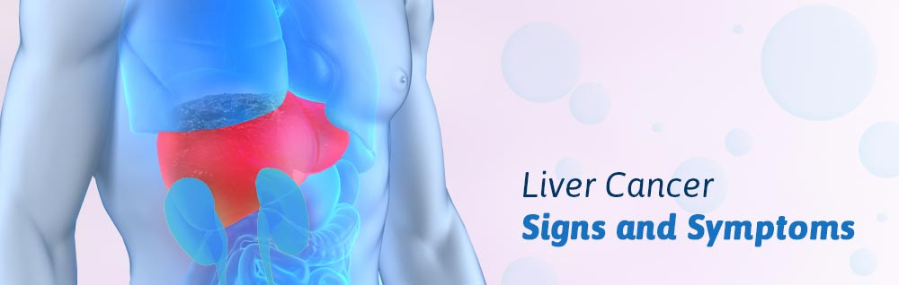 liver cancer sign symptoms