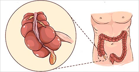 appendicitis-causes-symptoms-prevention.jpg