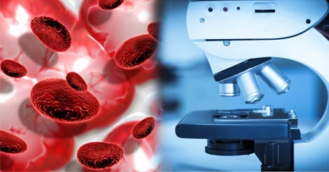 Blood Cancer Diagnosis & Treatment