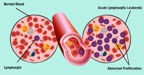 Blood Cancer Types and Stages