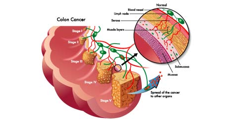 Colon Cancer - Types and Stages