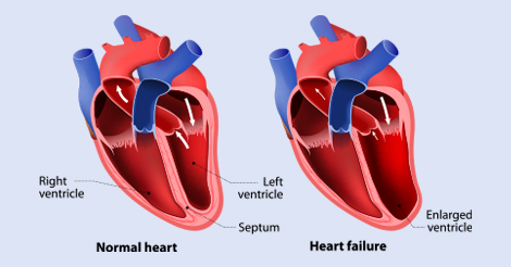 Know About Congestive Heart Failure Symptoms in Men
