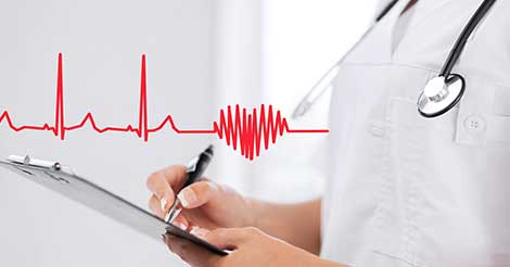 ECG or Electrocardiogram Test