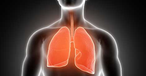 Lung Cancer Overview