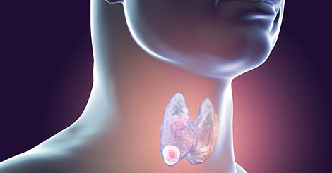 Throat Cancer - Signs & Symptoms