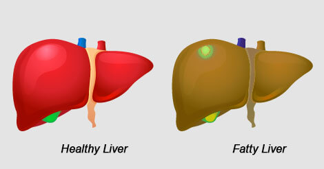 Unhealthy Lifestyle and Fatty Liver Disease: Know them to prevent them
